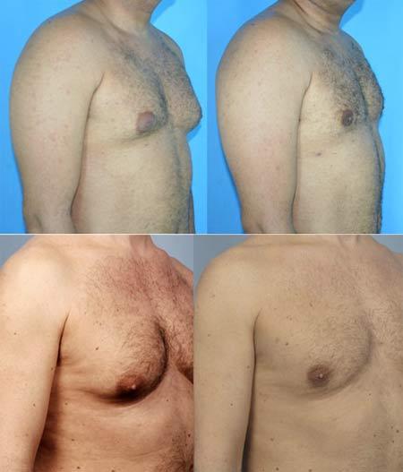 мышцы груди маленькие: